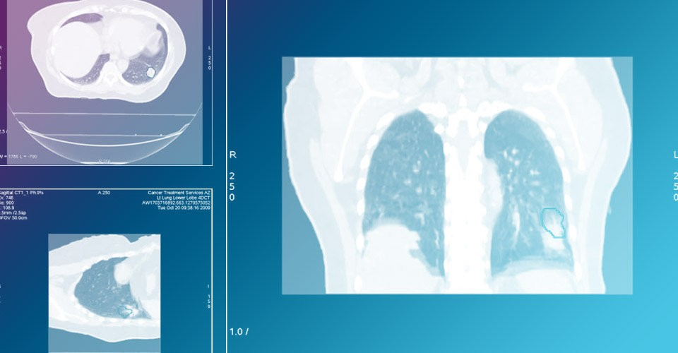 Respiratory Gating (RPM)
